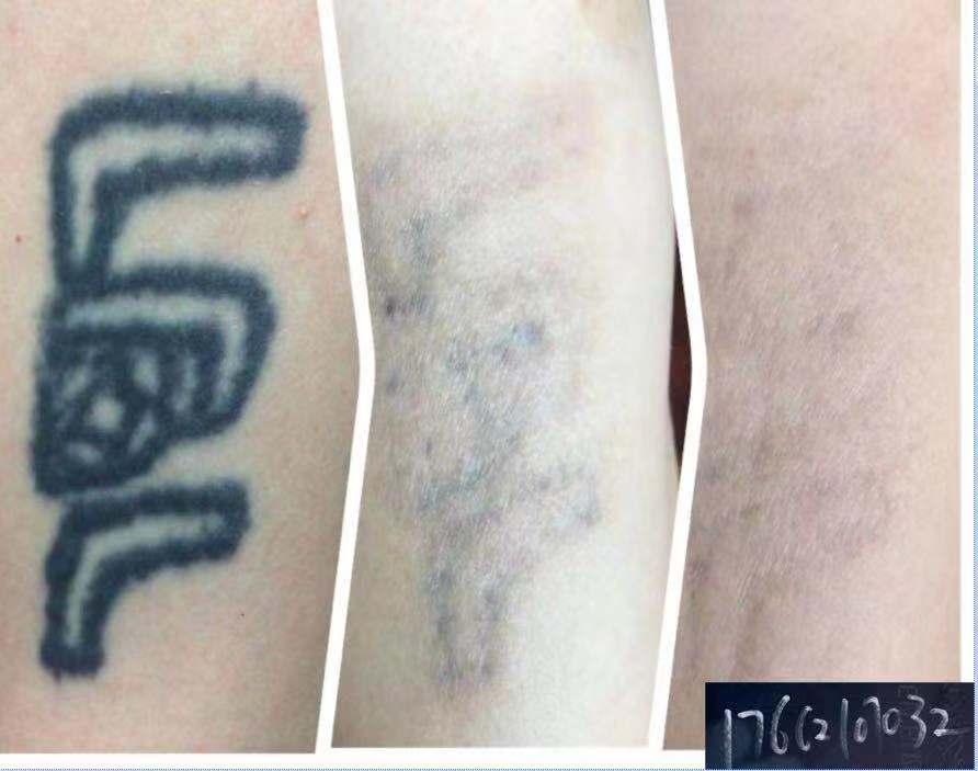 洗纹身好的方法山东洗纹身