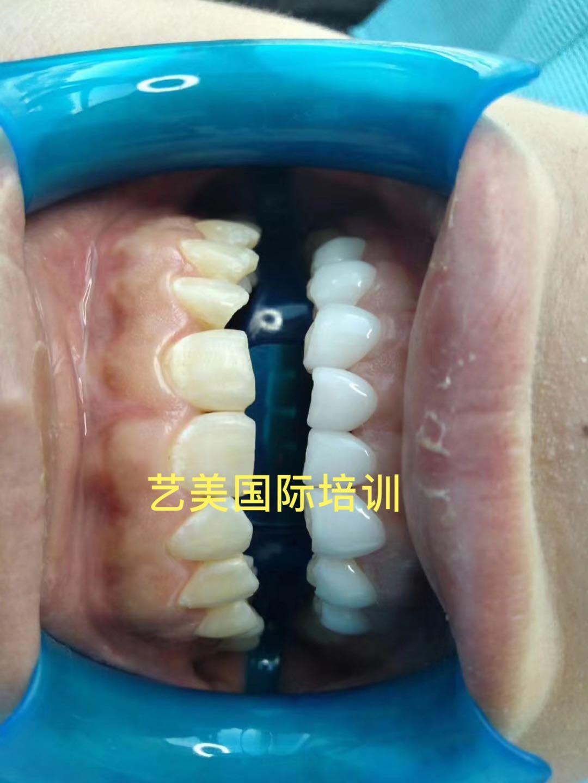 六安美牙贴面费用 理论实践结合